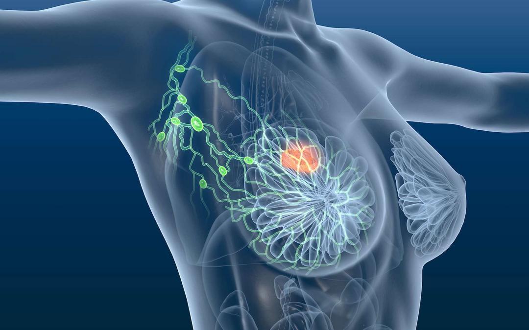 Fórum de Debates do IOP discute o futuro da abordagem do carcinoma de mama metastático
