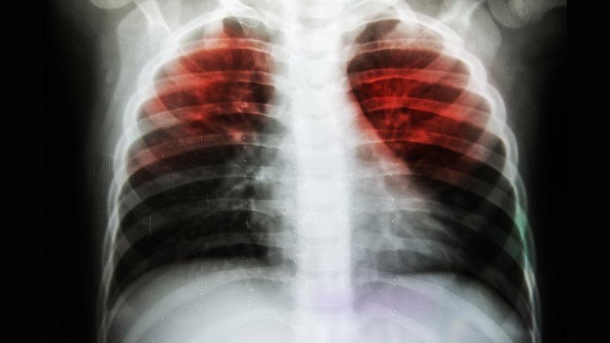 Tuberculose: um problema de saúde pública