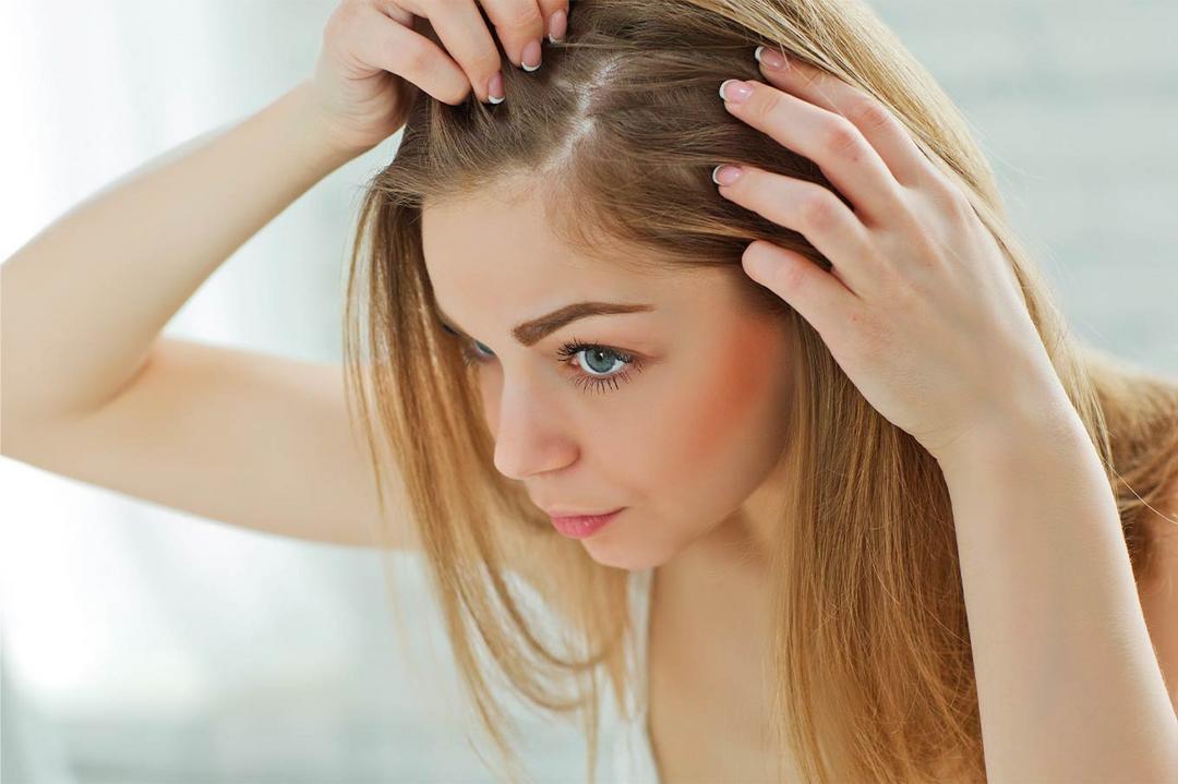 Qual a relação da chegada do outono e a queda de cabelo?