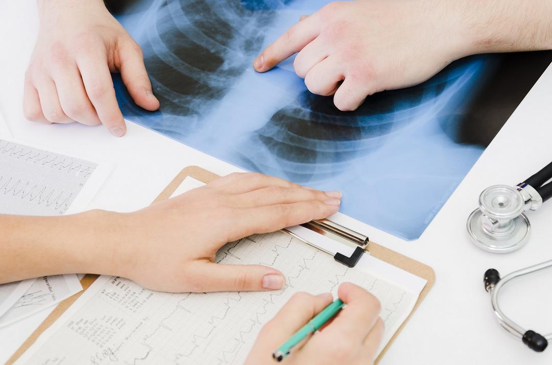 Pneumonia tem diferentes origens e inverno apresenta maior incidência