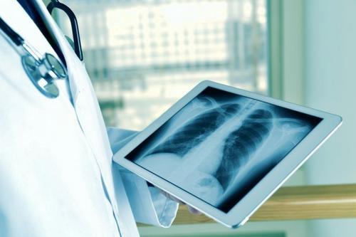 Radioterapia é indicada para alívio da dor de metástases ósseas